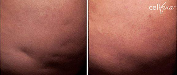 cellfina - photo after treatment