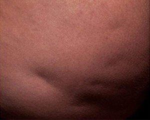 cellfina - photo before treatment