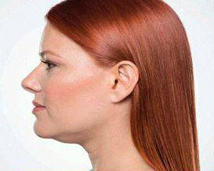 kybella - photo before treatment