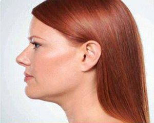 kybella - photo after treatment