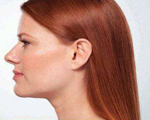 kybella -  before treatment