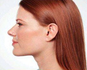 kybella - after treatment