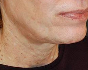 ultherapy -  before treatment