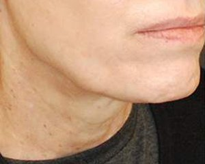ultherapy -  after treatment