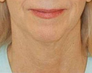 ultherapy - photo after treatment