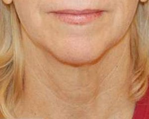 ultherapy - photo before treatment