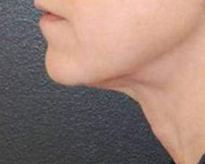 ultherapy - photo after treatment, side view