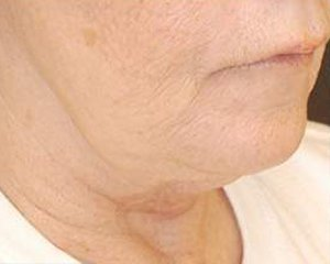 ultherapy - before treatment, side view
