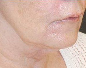 ultherapy - after treatment, side view