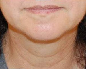 ultherapy - photo before treatment, front view
