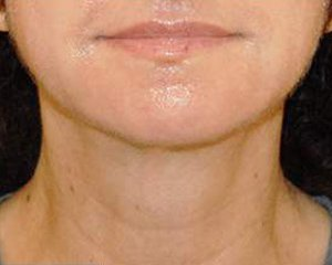 ultherapy - photo after treatment, front view