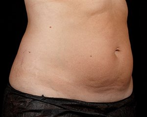 sculpsure - photo after treatment