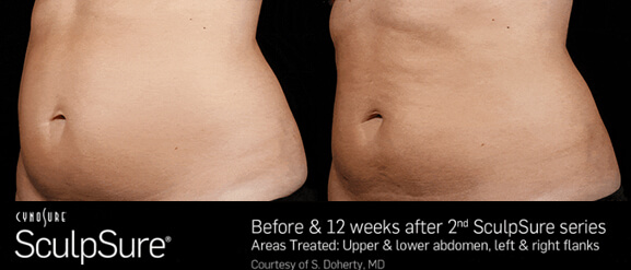 sculpSure - after treatment